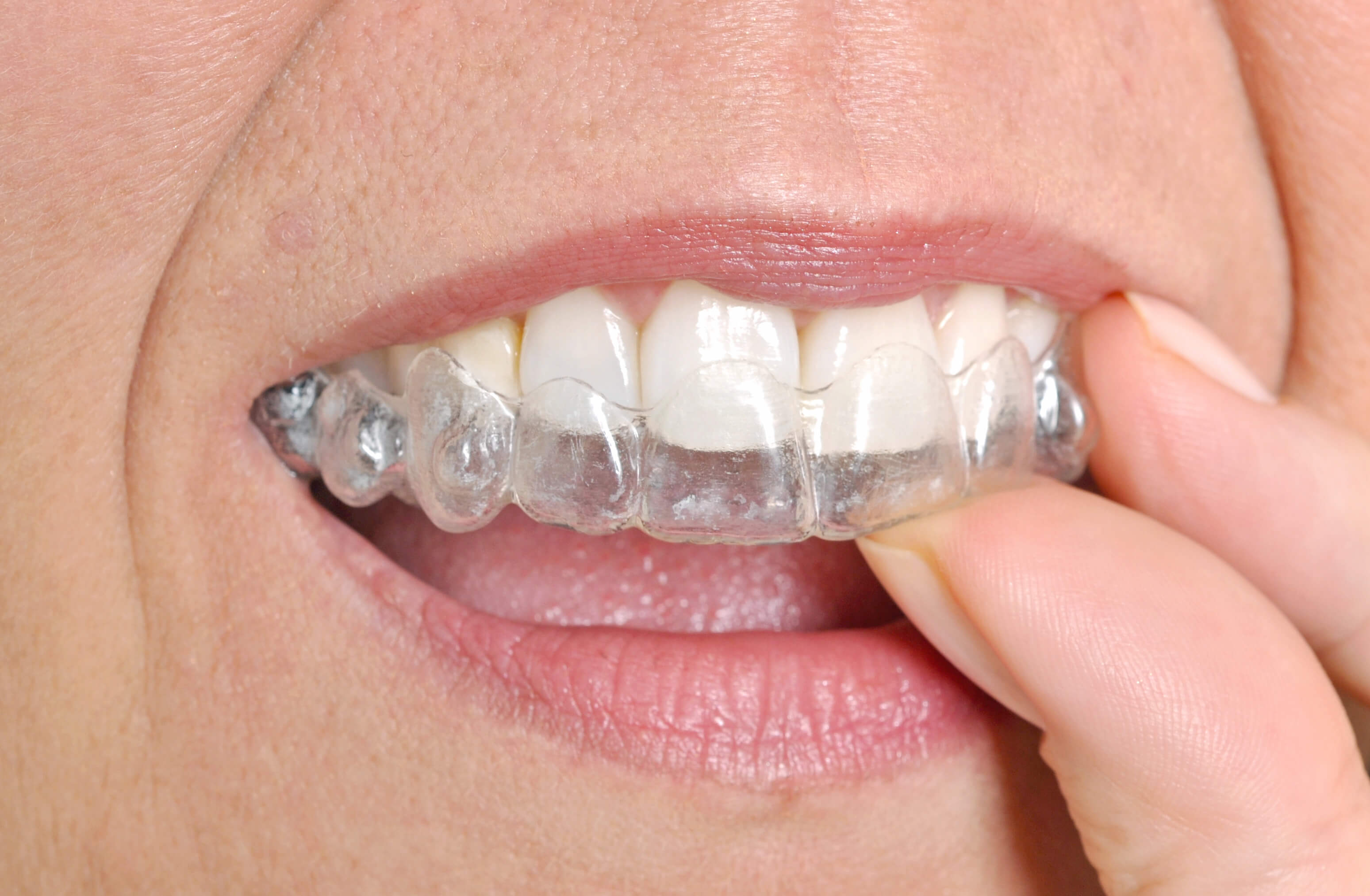 Get Invisalign in west hills by a certified orthodontist